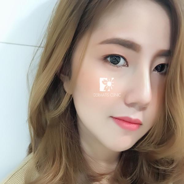 sq-ld-nose-13